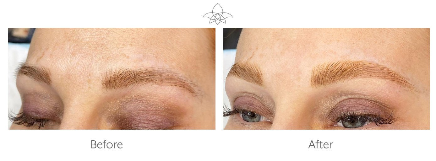 Brow Lamination Before and After Photos