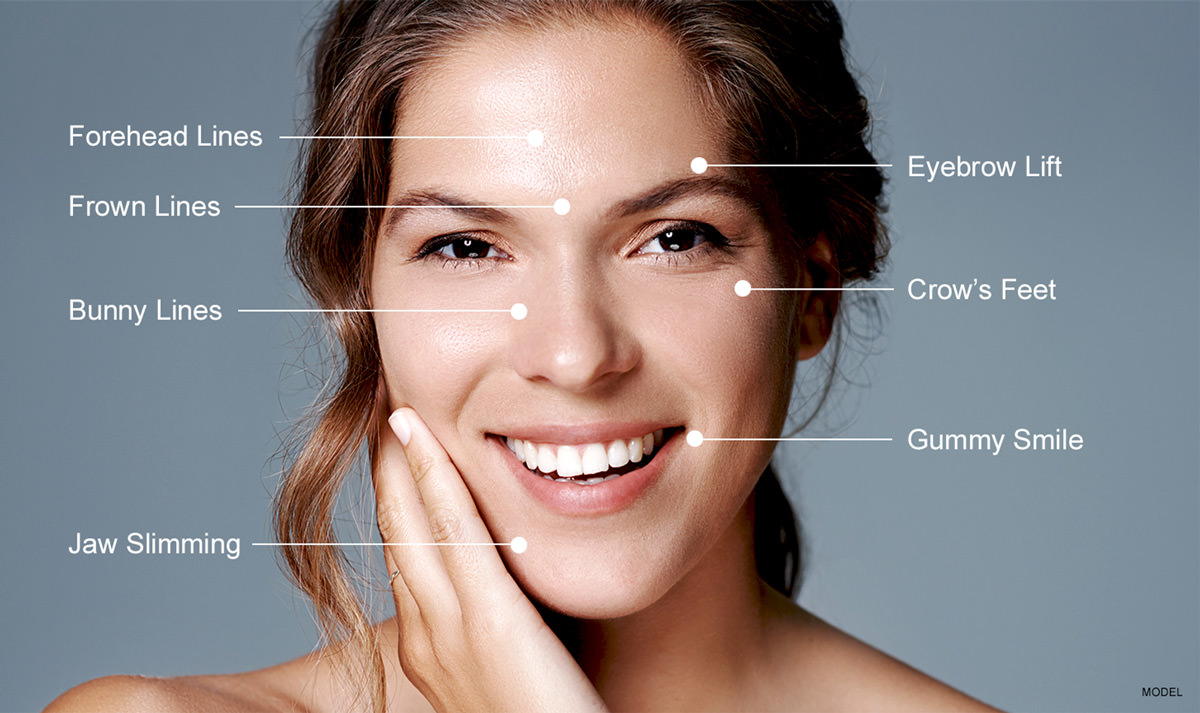 Areas to use Botox on the face