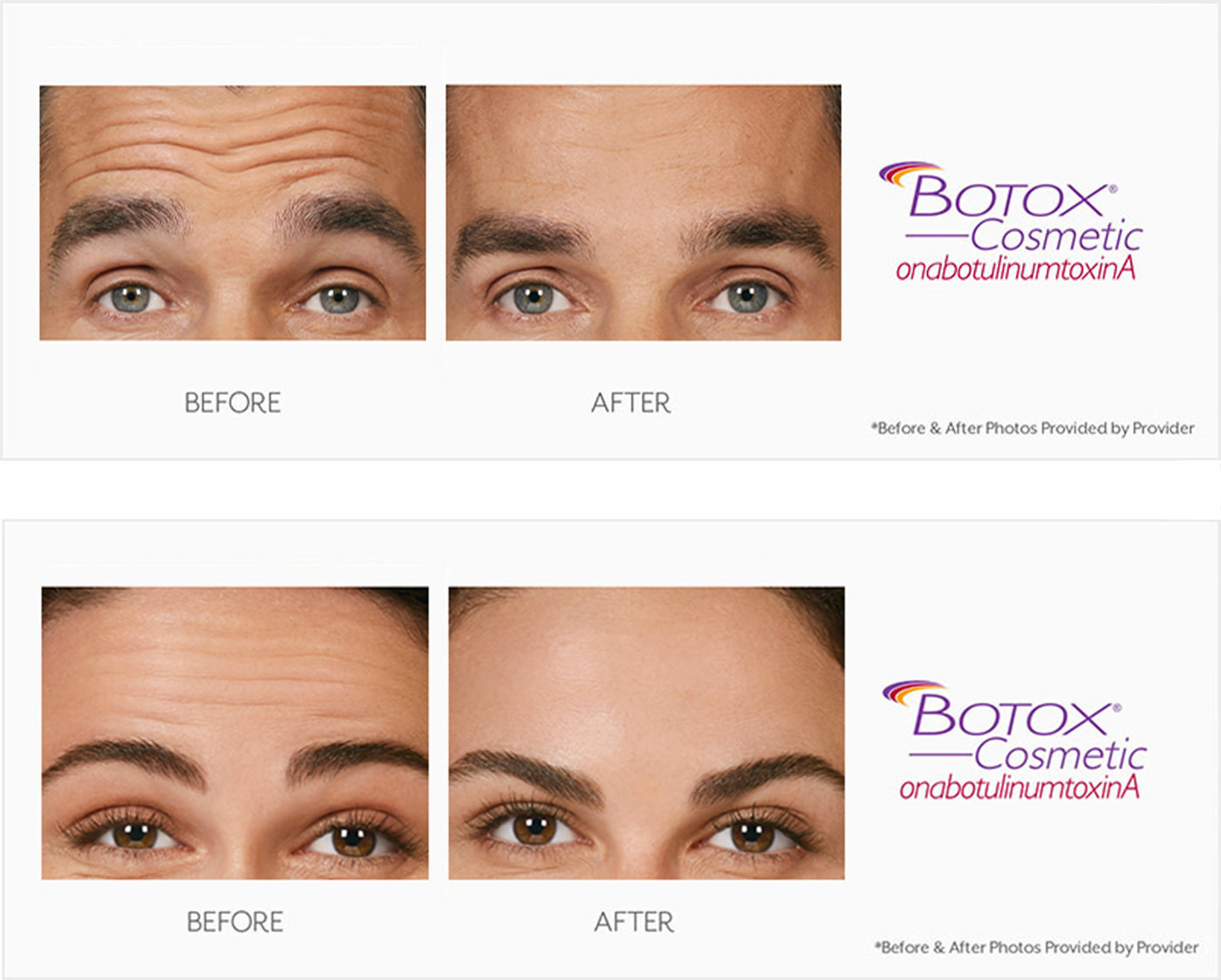 Botox before and after photos on a male and female