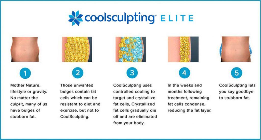 Coolsculpting Elite Diagram