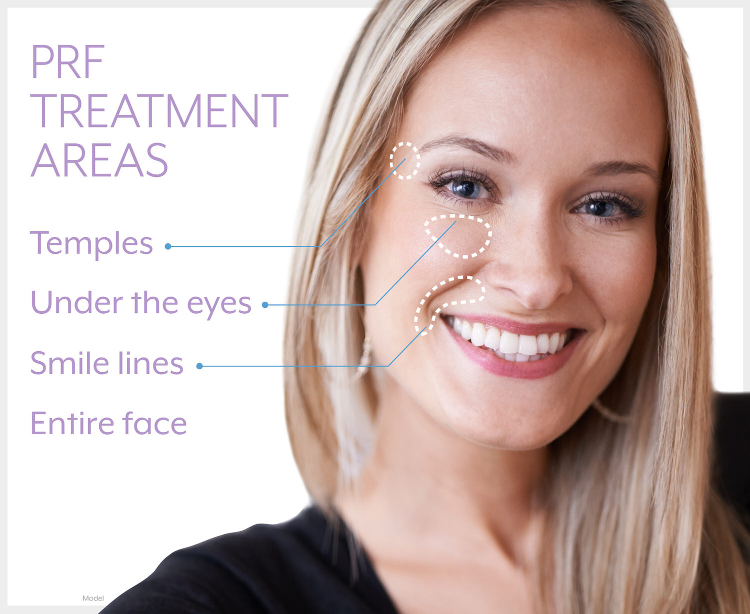 PRF treatment areas on the temples, under the eyes, smile lines, and entire face.